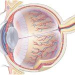 Изменения глаза при сахарном диабете