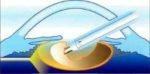 Cпособы расширения зрачка для проведения факоэмульсификации