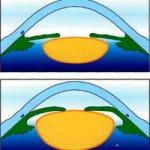 Факоэмульсификация при набухающей катаракте