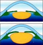 Факоэмульсификация при набухающей катаракте (острый приступ факоморфической глаукомы)