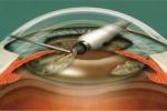Проведение одномоментной факоэмульсификации с эндоскопической циклолазеркоагуляцией