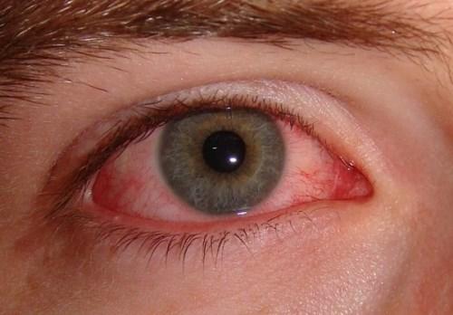 Симптомы коньюктивита у взрослых
