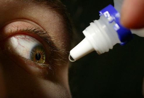 Лечение аллергического коньюктивита