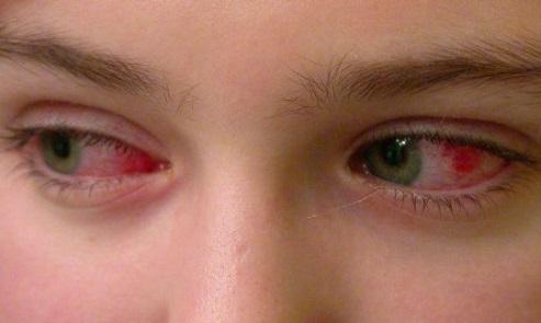 Симптомы аллергического коньюктивита