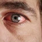 Причины возникновения коньюктивита. Что это за заболевание?