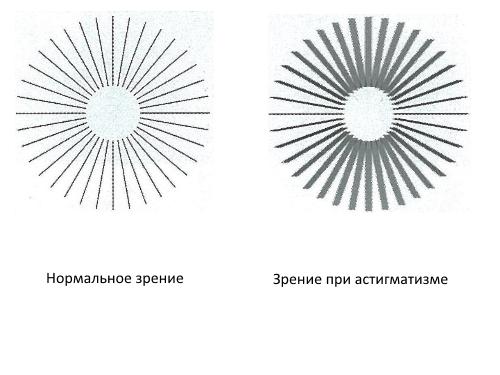 Фото астигмазма