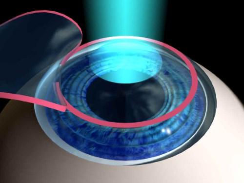 Стоимость лазерной коррекции астигматизма LASIK