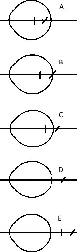 Сложный миопический астигматизм