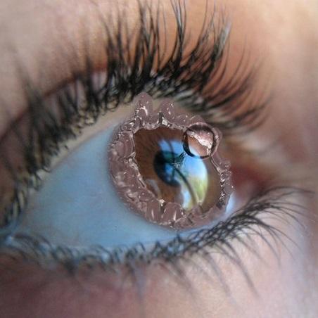 Лазерная коррекция зрения врач отзывы